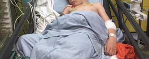 bimbo cerebroleso per colpa dell'ospedale