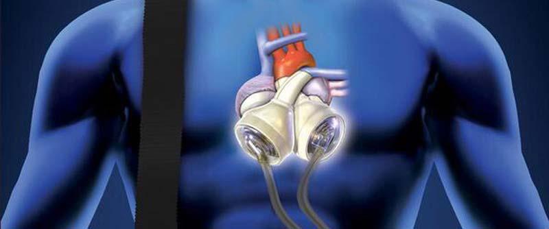mini cuore bionico