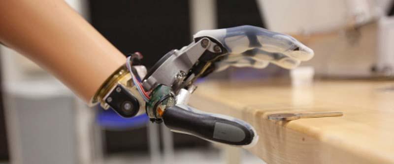 protesi bionica mano