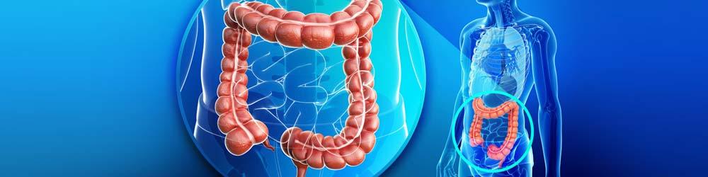 errore intervento occlusione intestinale