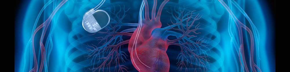 errore-impianto-pacemaker