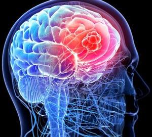 errori in neurologia