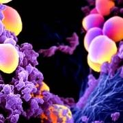 risarcimento per infezione da stafilococco