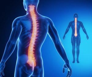 intervento sbagliato colonna vertebrale